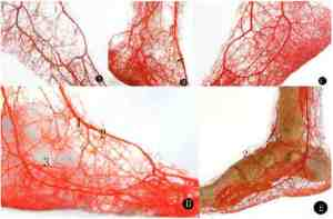 Blood Vessel Branching in the Foot (courtesy of scielo.cl)